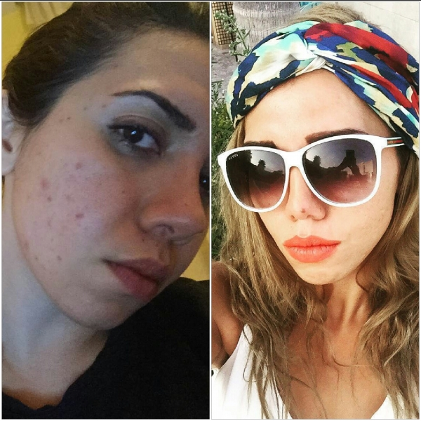 #RealTalk: A Story of Acne, Depression and a Vegan Diet