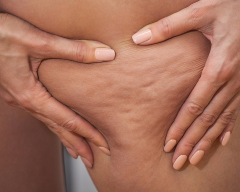 Losing Weight Doesn't Make Cellulite Disappear